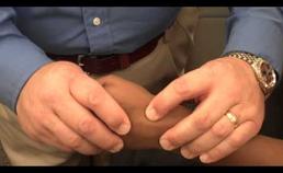 Watson-test bij scafolunaire dissociatie
