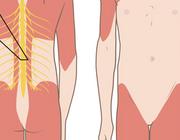 Een werkneemster met spinale musculaire atrofie type 3