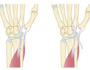 Werkhervatting na chirurgische interventie voor duimbasisartrose