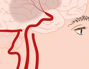 Trombocytenaggregatieremmers