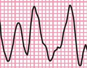 Hartfalen en re-integratie