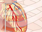 ICD, de levensreddende implanteerbare cardioverterdefibrillator