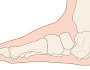 De voet bij een patiënt met diabetes mellitus is hoofdzaak en geen bijzaak