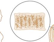 Een fractuur bij personen ouder dan 50 jaar: denk aan osteoporose