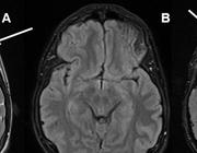 Traumatisch hoofd-/hersenletsel