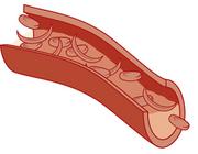 Kan hemoglobinopathie de oorzaak zijn van moeheid?