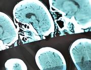 Niet-aangeboren hersenletsel door een hersentumor