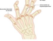 De richtlijn Reumatoïde artritis en participatie in arbeid